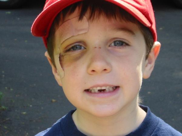 Cole blackeye toothless